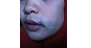 Rita Kardina Siahaan yang menjadi korban penganiyaan (Istimewa)