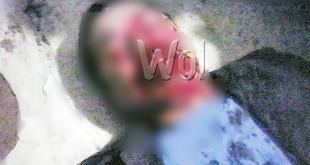 Sutar saat terluka parah dianiaya pelaku kejahatan.(WOL Photo)