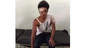 Salah satu pelaku Muliono harus mendapatkan perawatan akibat terjatuh saat akan ditangkap polisi, Kamis (3/9)