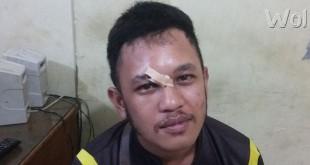Nicolas Saragih alias Nico (24) wartawan Liputan Medan,com, korban penembakan sudah pulang dari RS Bhayangkara Polda Sumut Jalan KH Wahid Hasyim Medan.(WOL Photo/gacok)